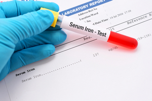 Serum Iron - Test